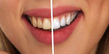 metode-naturale-de-albire-a-dintilormetode-naturale-de-albire-a-dintilor